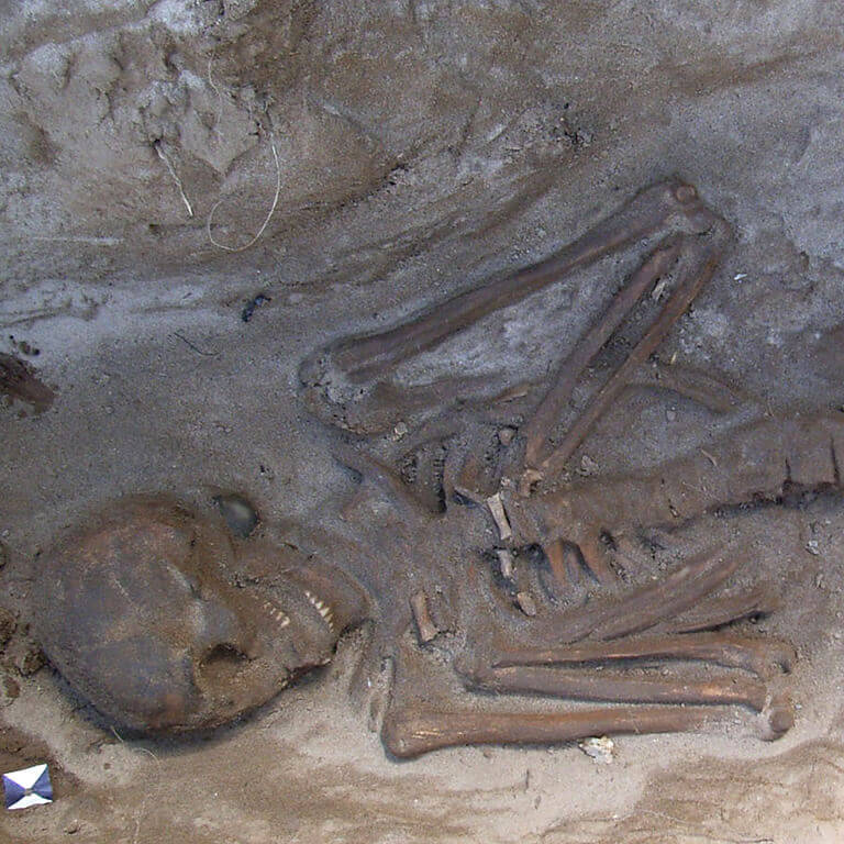 A skeleton with codename Untwēoġendlic as discovered in the bowl hole graveyard